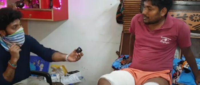 Смартфон взорвался в кармане мужчины, это попало на камеру